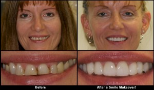 free teeth makeover